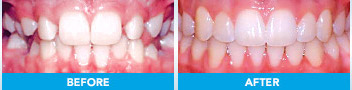 Damon braces before and after example 2