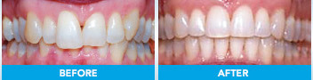 Damon braces before and after example 3