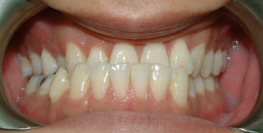 Underbite before orthodontic care