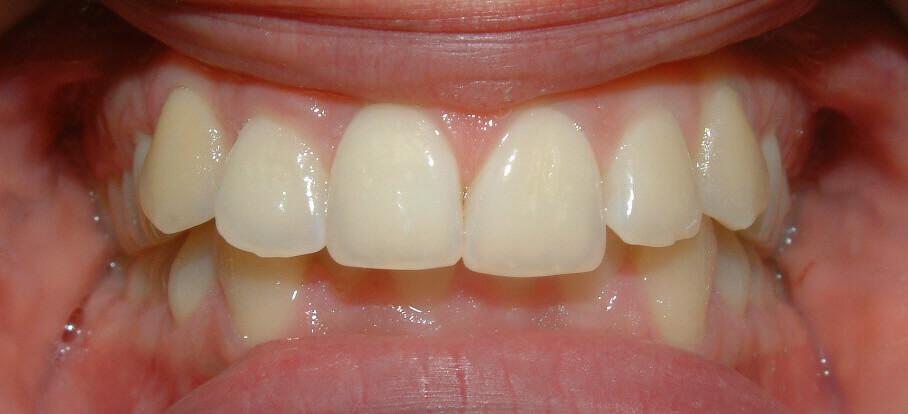 Over jet teeth before braces
