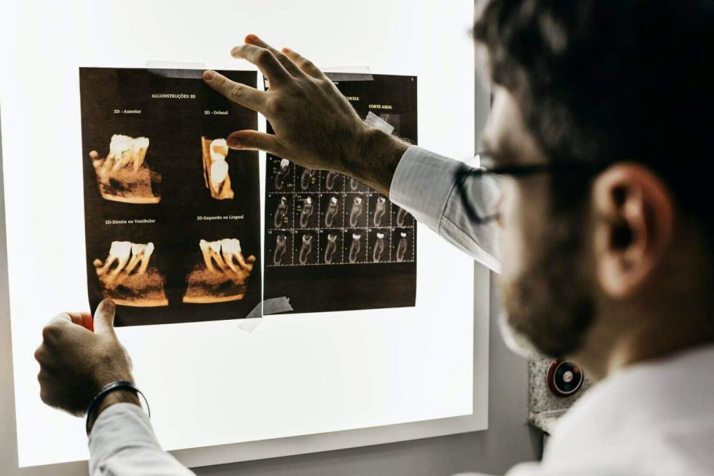 Dentist Looking at Teeth X-Rays