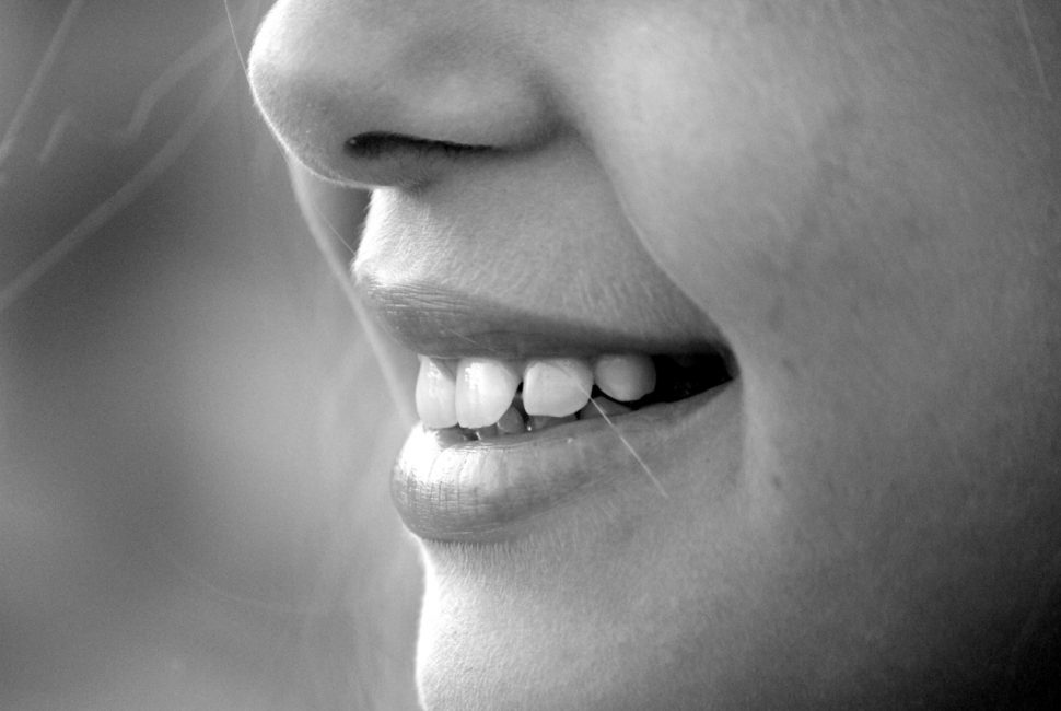 Smile with Overbite
